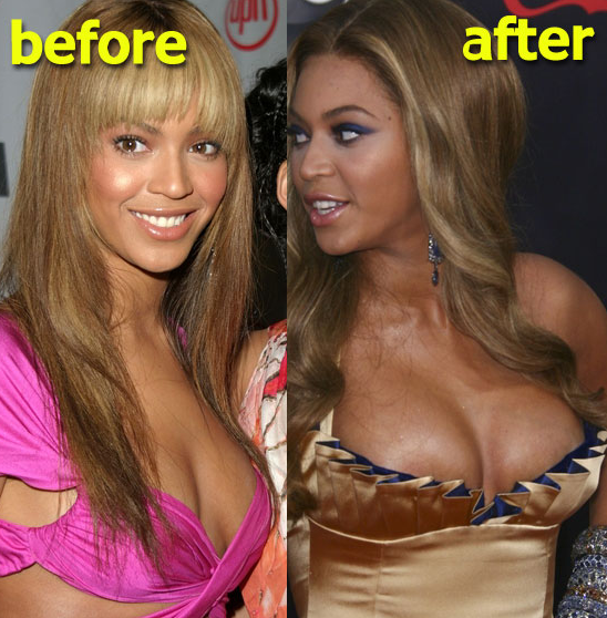 beyonce-breast-implant-enlargement-before-after