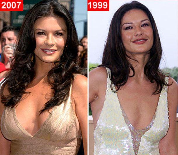 Catherine_Zeta_Jones_plastic_surgery_celebrities_boob_job