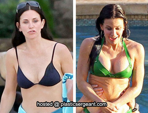 did-courteney-cox-get-breast-implants