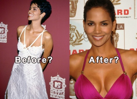 halle-berry-plastic-surgery-before-and-after