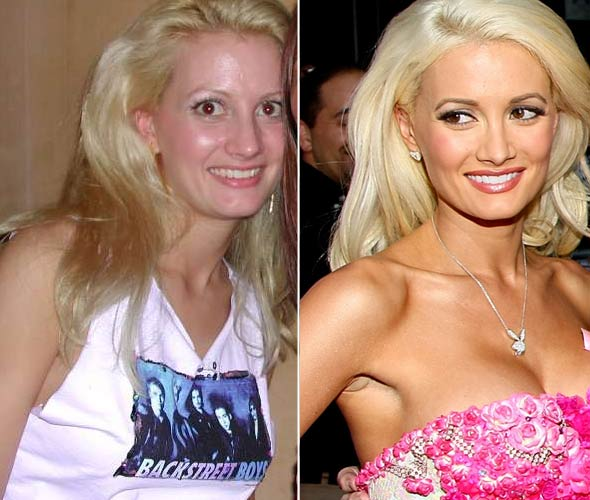 holly-madison-plastic-surgery-2