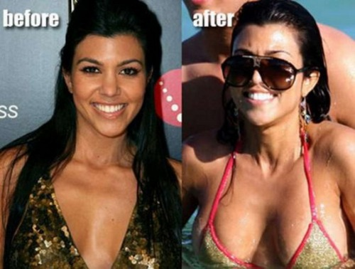 Kourtney Kardasianbefore-after-celebrities-actress-plastic-surgery-breast-implant-photos-14
