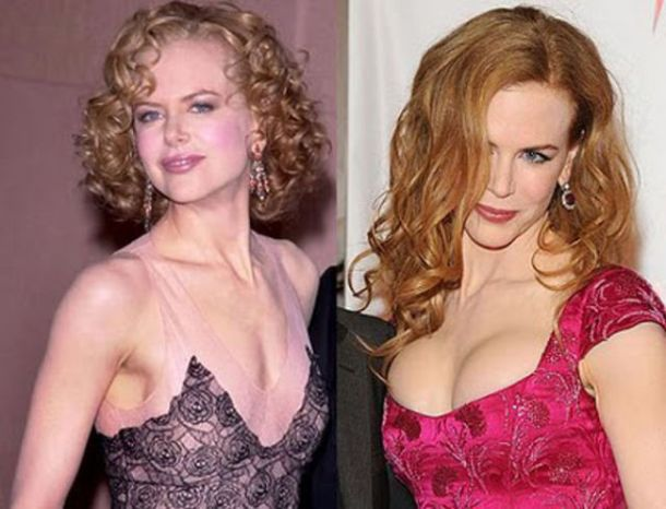 Nicole_Kidman_celebs_with_plastic_surgery_640_28