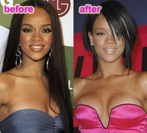 Rihanna_before-after-celebrities-actress-plastic-surgery-breast-implant-photos-3